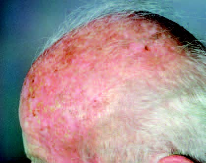 Aktinische Keratose, Stachelzellkrebs