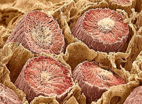 Krebs, Tumor Karzinom Zellen