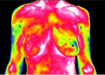 Hyperthermie,  Überwärmung, Fiebertherapie