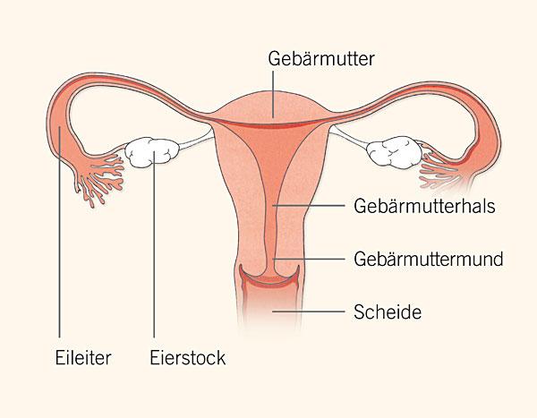 Eierstockkrebs Ovarialkarzinom, Eieleiterkrebs